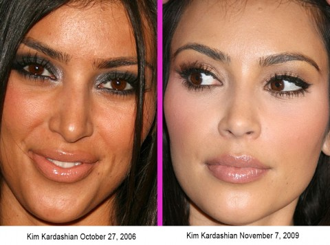 Kim-Kardashian-Before-and-After-Botox